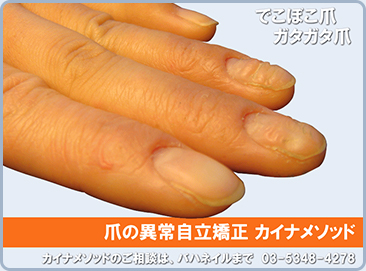 ボコボコ 理由 爪